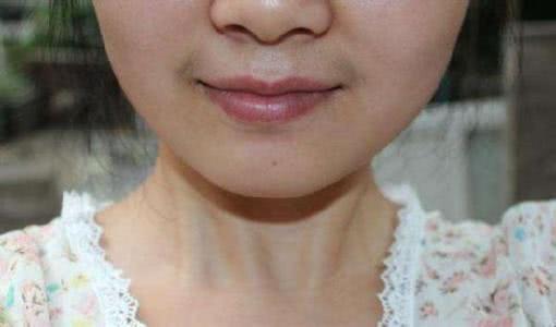 為什麼有的女性嘴邊會長出「小鬍子」?可以經常刮嗎?告訴你答案